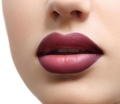Filler lip augmentation techniques